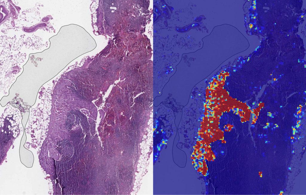Obrázek: Umělá inteligence může pomoci rozpoznat metastáze rakoviny, Google testuje nový algoritmus