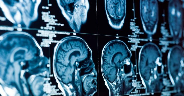 Obrázek: Obezita může způsobit zmenšení lidského mozku, varují vědci v nové studii