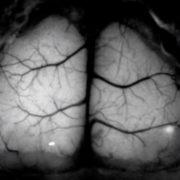 Obrázek: Jak se mění mozek při Alzheimerově chorobě? Myš dostala průhlednou lebku, vědci ji vytiskli na 3D tiskárně