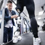 Obrázek: Bionická protéza s umělou inteligencí je open source a stojí 640 000 korun