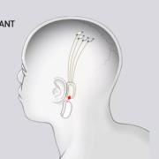 Obrázek: Muskův startup Neuralink implantuje čipy do mozku. Má řešit poranění míchy či trvalé poškození mozku