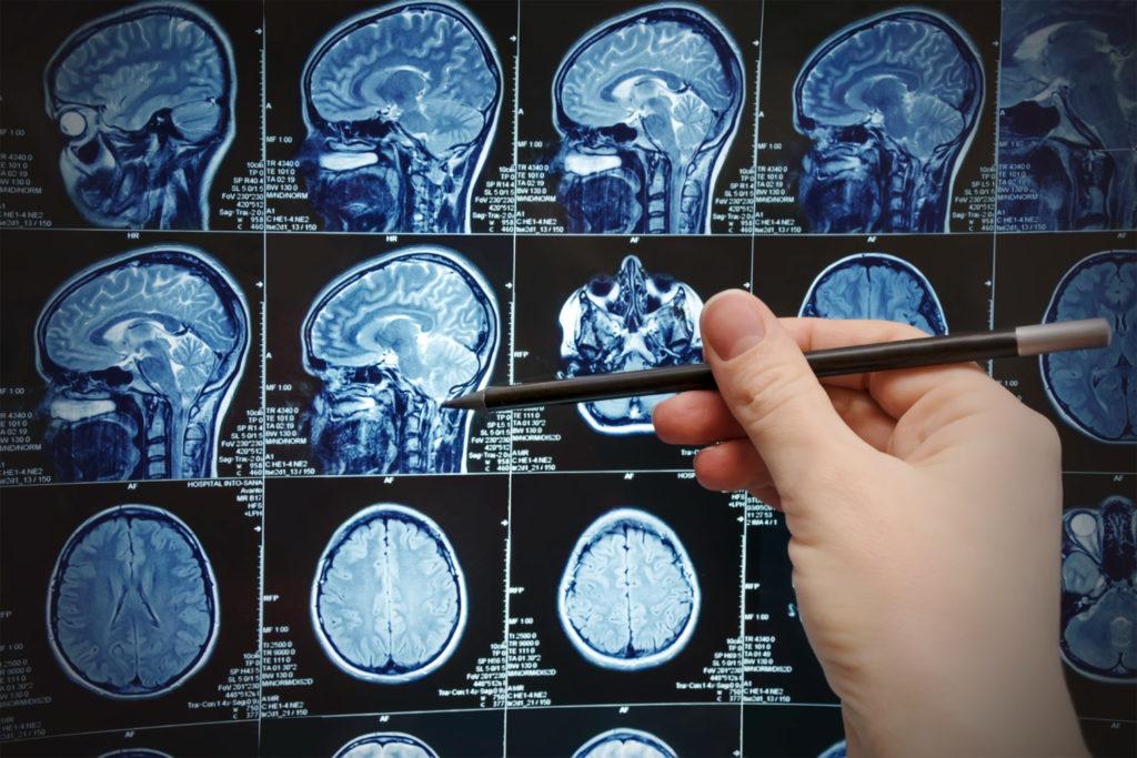 Obrázek: Lépe než doktor: Umělá inteligence od IBM dokáže předpovědět budoucí průběh Parkinsona