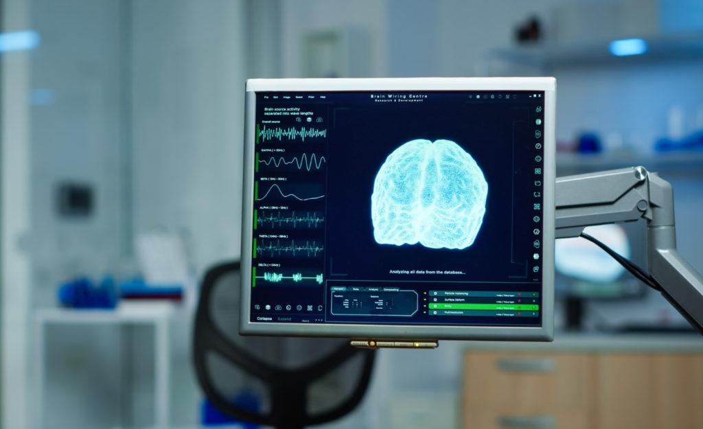 Obrázek: Kopírovat a vložit: Samsung chce s neuromorfními čipy okopírovat lidský mozek